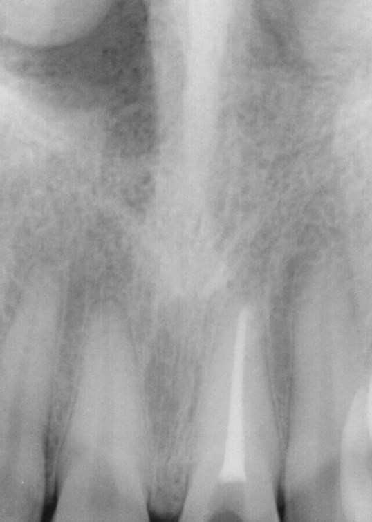 Root Canal Therapy Root Canal