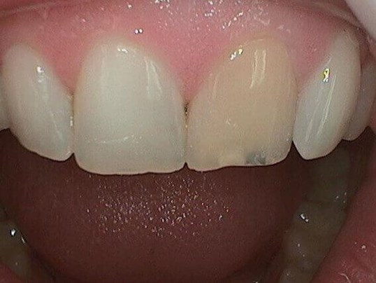 Final Result Before Whitening