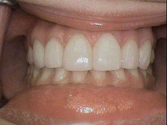Veneer Enamel Restoration After