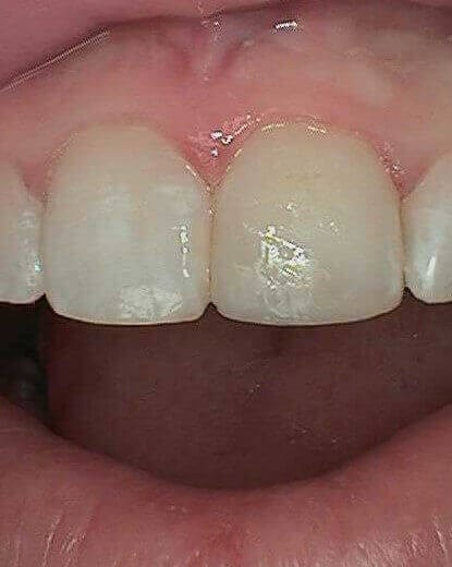 Chipped Tooth After