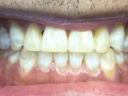 Anterior Teeth After