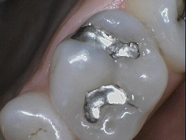 Amalgam Replacement Silver Filling
